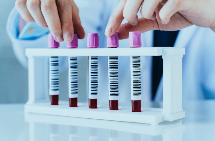 Hands of a lab technician with blood test sample tubes in a row for laboratory blood analysis.