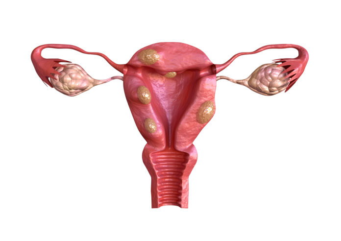uterine fibroid are benign solid tumors formed by muscle tissue. Its size can vary greatly and some cause large abdomen increase. 3D rendering