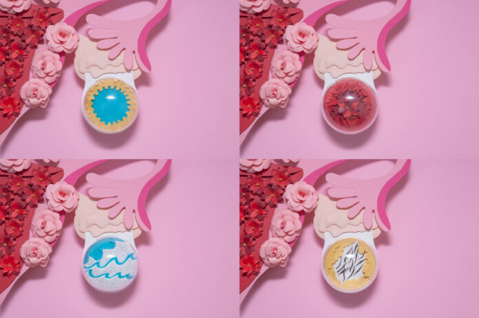 Creative paper concept. Different types of ovarian cysts. Yellow cyst, follicular cyst, endometrioid cyst, dermoid cyst