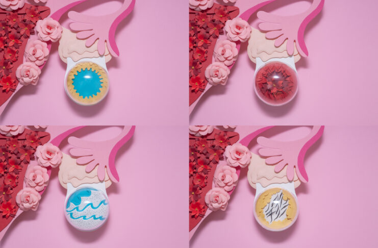 Creatief papierconcept. Verschillende types van eierstokcysten. Gele cyste, follicular cyste, endometrioid cyste, dermoid cyste