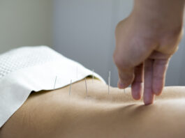 traditionele acupunctuurbehandeling