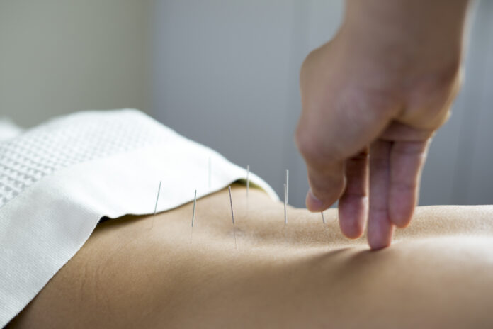 traditional acupuncture treatment