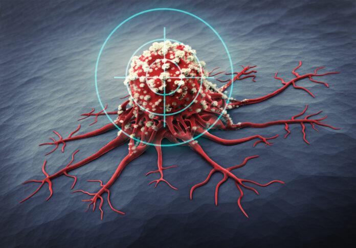 Rendu 3D d'une cellule cancéreuse - illustration médicale