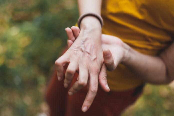 Nahaufnahme der kleinen Hand einer jungen Frau, die an Arthritis leidet - Weiblicher Arm mit entzündeten und schmerzhaften Gelenken - Chronische Krankheit, die eine Verformung der Knochen verursacht