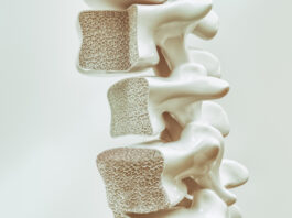 Osteoporosis on the spine -- 3d rendering