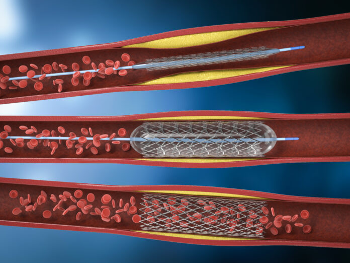 rendering 3d procedura di angioplastica a palloncino con stent in vena