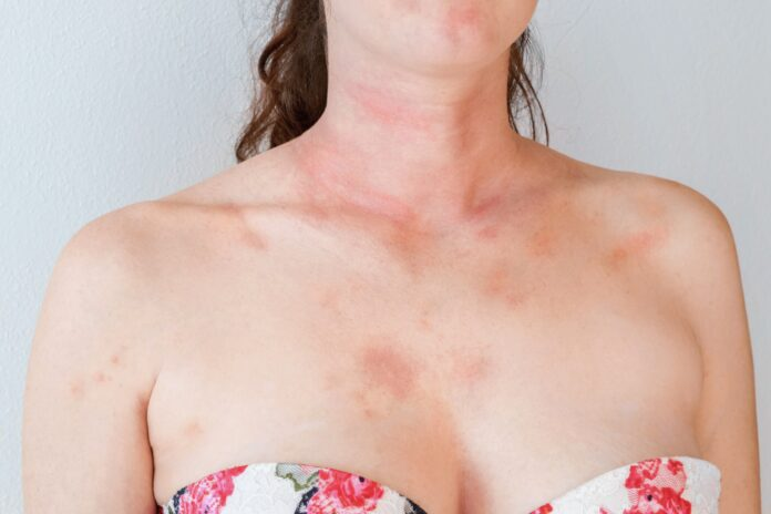 Allergic skin reaction on the female neck and face - red rash