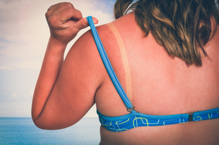 Young woman with red sunburned shoulder - sunburn concept