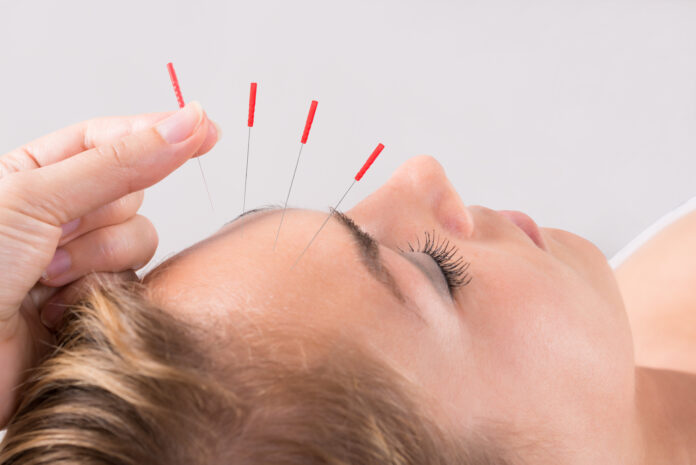 Closeup of hand performing acupuncture therapy on head at salon