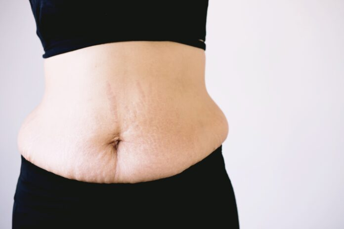 Stretch marks caused by pregnancy weight gain