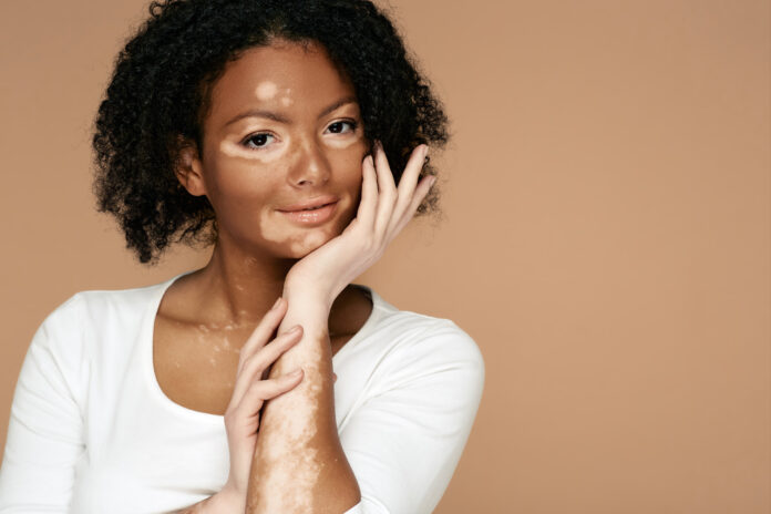 Young woman demonstrates her skin spots on her hands and face with vitiligo